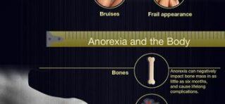 anorexia nerviosa complicaciones