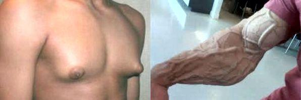esteroides para hombres