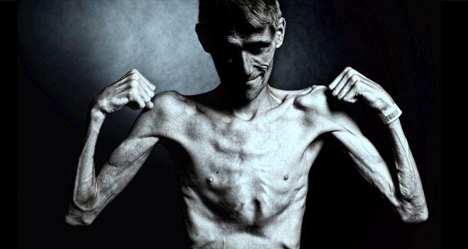 anorexia en hombres