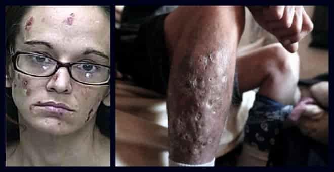 efectos del cristal en la piel